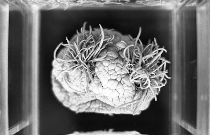 Neuer Behandlungsansatz für Hirntumore